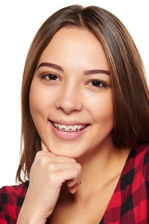 54410770 - closeup portrait of young teen female smiling with braces on her teeth